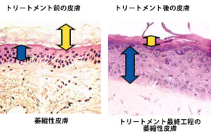 skin_image (1)